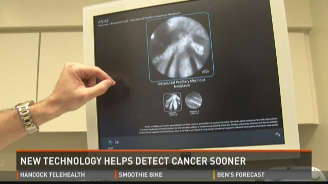 New technology could help detect pancreatic cancer sooner